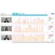 表情トレーニングAI 心sensor for Training 製品画像