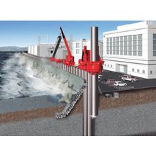 インプラント堤防 製品画像